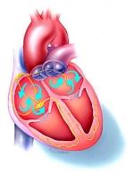 Vitamine C en E tegen hartritmestoornissen
